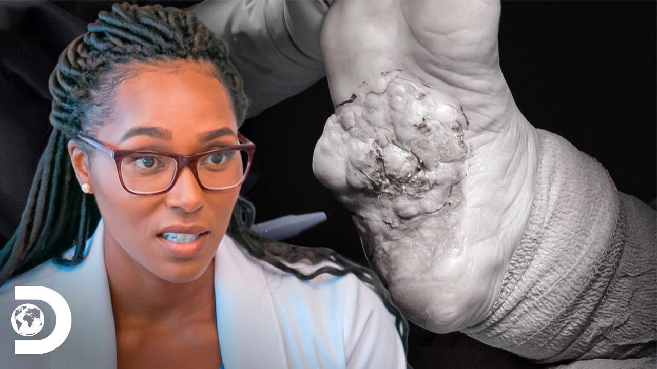 Pé de Stacy infecciona e corre risco de ser amputado | Meus Pés Estão Me Matando | Discovery Brasil