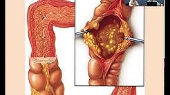 hqdefault - Vancomycin And High Flux Hemodialysis