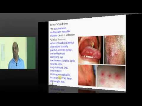 Behcet's Syndrome High yield Topic Internal Medicine for USMLE Step 2 prep www.anatomy2medicine.com
