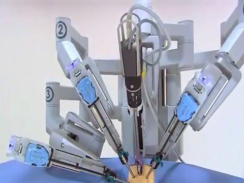 Операция по удалению простаты, радикальная простатэктомия
