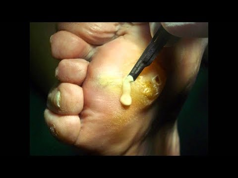 A Serious Foot Infection