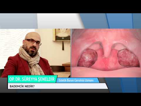 Bademcikler nezaman alınmalıdır Op.Dr. Süreyya Şeneldir