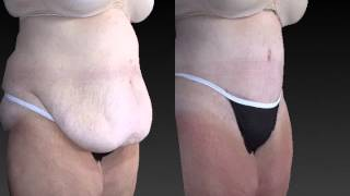 Tummy Tuck 3D Before and After-04