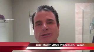 DOT C02 Laser Video Results - Chicago Cosmetic Surgery and Dermatology Thumbnail