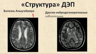 видео Болезнь Альцгеймера: фото симптомов, причины и диагностика, лечение и профилактика болезни Альцгеймера