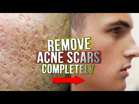EXACTLY What To Do With Acne Scarring! (From Experience)