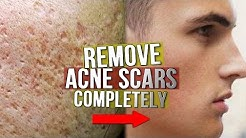 hqdefault - Remove Acne Craters Face