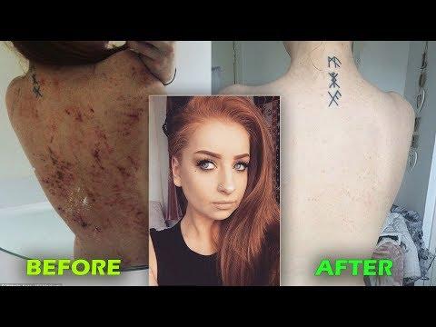 26-Year-Old Goes Vegan, Cures Eczema | Eczema Healing News