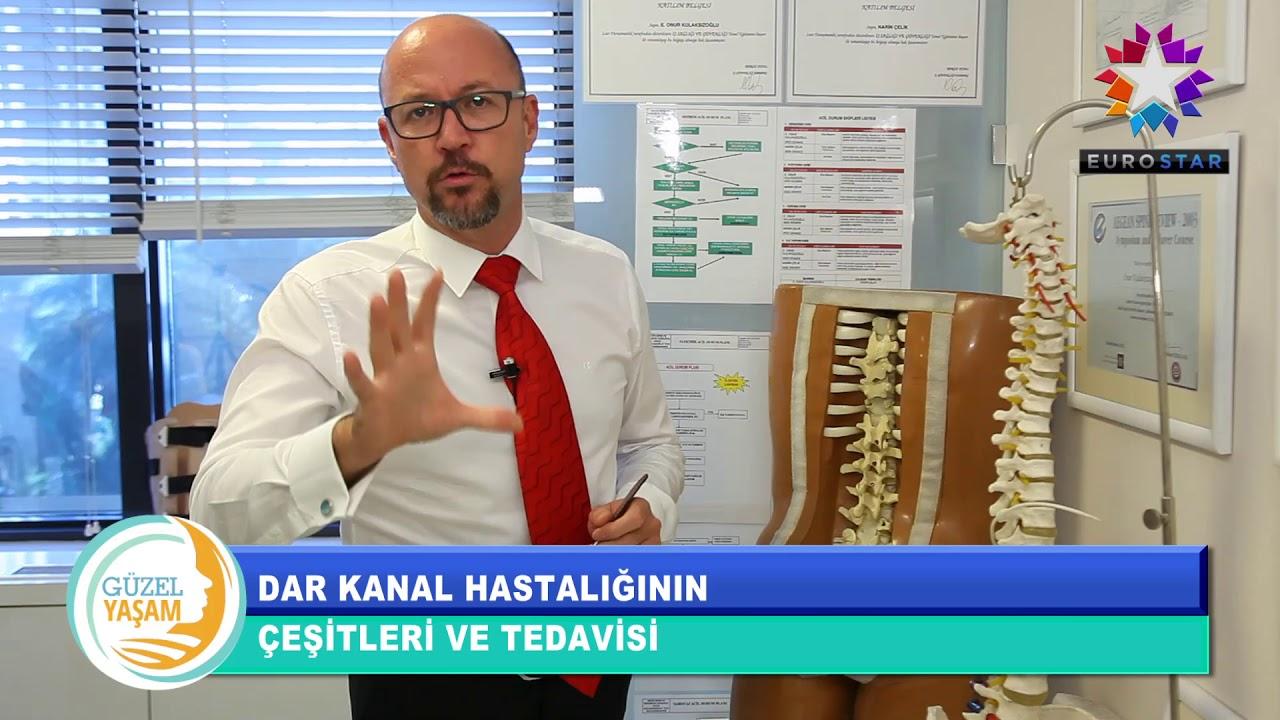 Omurilik Kanal Daralması Belirtileri-Omurilik Kanal Daralma Ameliyatı