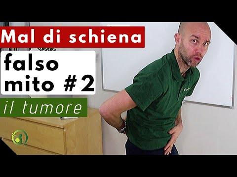 Mal di schiena: falso mito #2 il tumore - YouTube