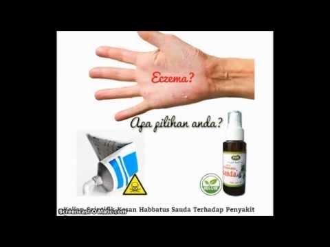 Habbatus Sauda Ubat Penyakit Eczema?