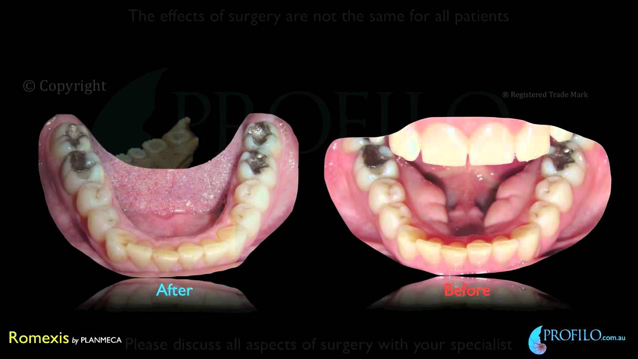 Orthognathic Jaw surgery & oral and maxillofacial surgery using CT ...