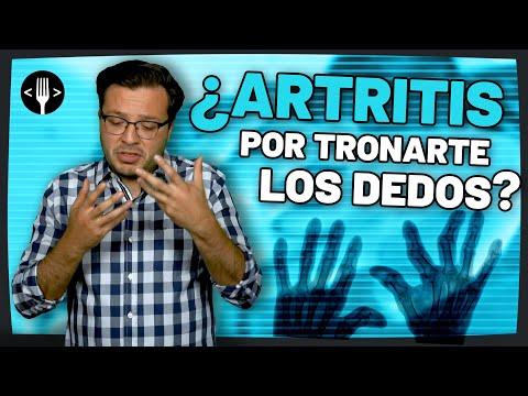 ¿Artritis por tronarte los dedos? | Código Espagueti al Servicio de la Comunidad