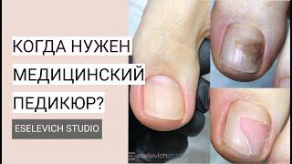 Медицинский Педикюр Какие Проблемы Ног и Ногтей Может Решить Медицинский Педикюр