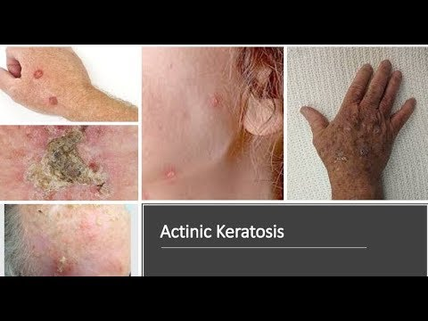Actinic Kearatosis (Solar Keratosis): : Causes, Diagnosis, Symptoms,  Treatment, Prognosis