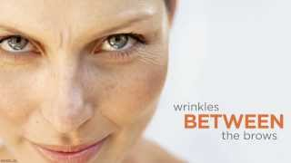 BOTOX® Cosmetic by Dr. Peter Brownrigg M.D., F.C.R.S. (C) Thumbnail