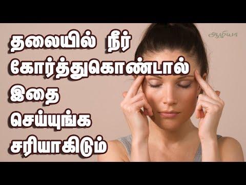 Headache Relief In Tamil | தலையில் நீர் கோர்வை  | Health Tips In Tamil