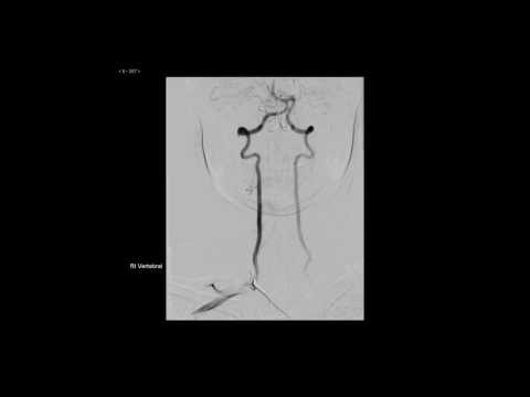 Cerebral angiography 1/4