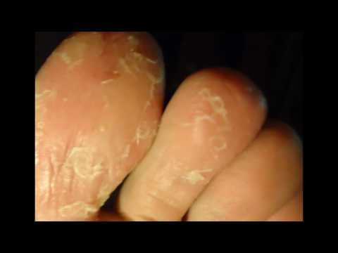 Почему облазит кожа на ступнях ног?