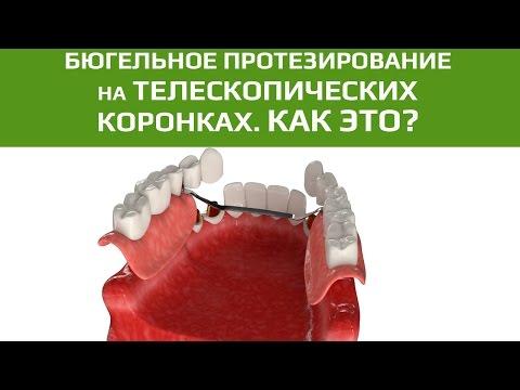 Имплантация жевательных (задних) зубов: варианты