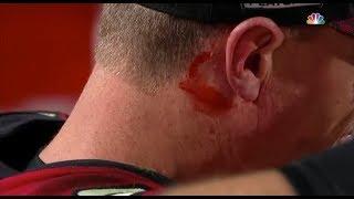 Matt Ryan Gets A Head Injury (Bleeding Ear) | Falcons vs. Rams | NFL Wildcard Weekend.