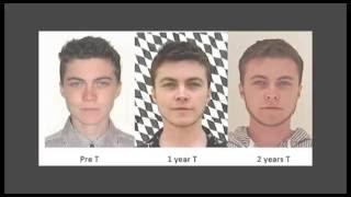 ftm трансгендер - 2 года Тестостерона (in russian)