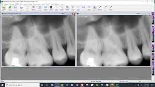 Training Video - XrayVision 4: Printing Multiple Images