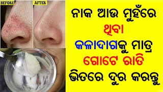 Remove Blackheads & Whiteheads Permanently   Get Clear Spotless Skin   Priyanka's Tips