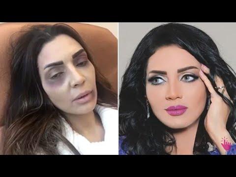شاهد ماذا حصل للممثلة عبير أحمد أثناء تصويرها كواليس مسلسل كلام اصفر الحلقة كاملة Youtube