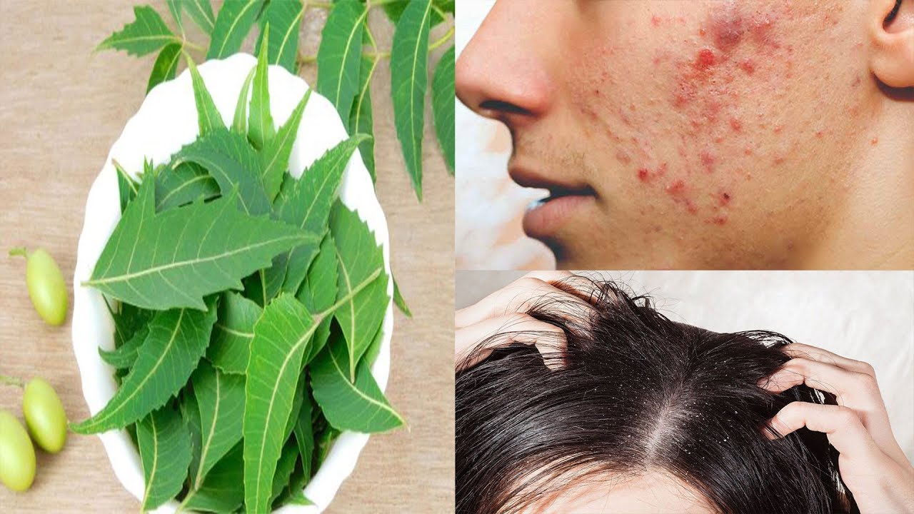 10 Wonderful Benefits and Uses of Neem A Herb That Heals / Neem Leaves  Benefits