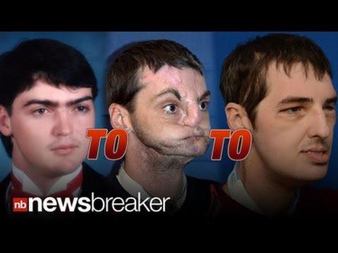 SAVING FACE Historic Face Transplant Allows Disfigured