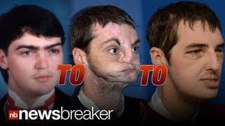 SAVING FACE: Historic Face Transplant Allows Disfigured Gunshot Victim New Life