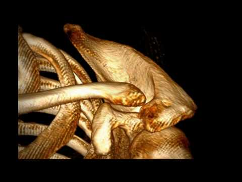 Mild Degree Acromioclavicular Joint Arthrosis