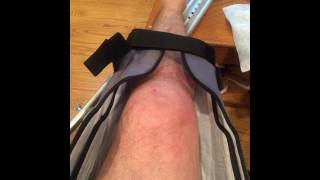 How to Recover From a Broken Knee Cap