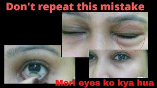 Don't Apply Contact leฑses Without Watching this video/How to apply Contact lens /Do and Don'ts