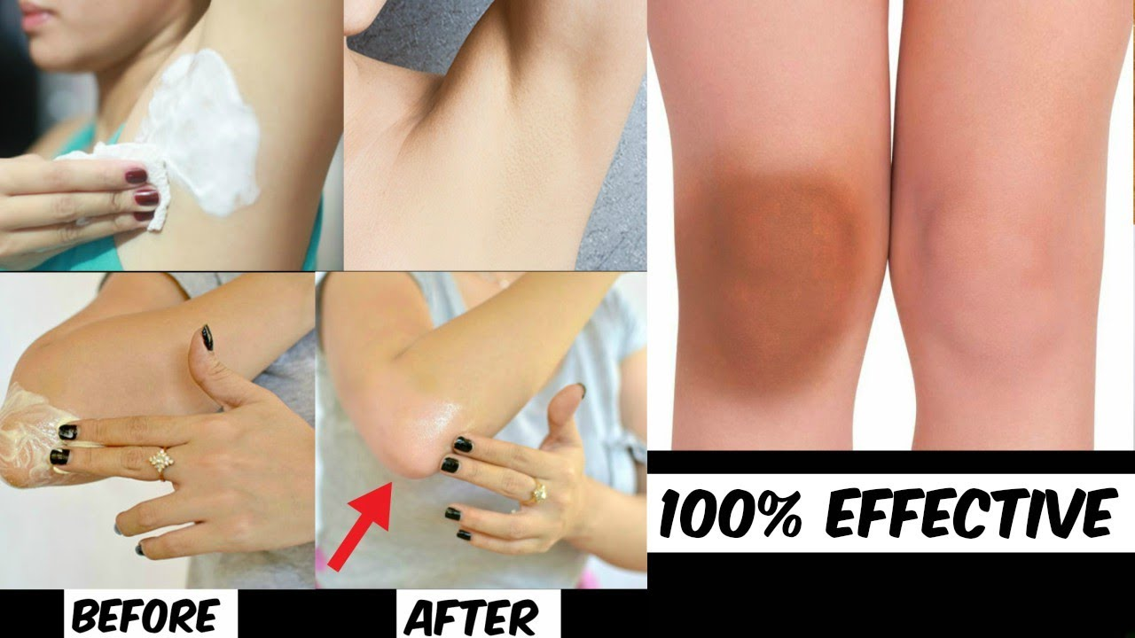 how to get rid of dark underarms and knees