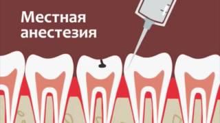 Лечение кариеса orange(Orange clinic. Клиника позитивных эмоций! Оказывает все виды стоматологических услуг. Тел для справок:8(727)2741084,8701707..., 2015-04-13T05:37:19.000Z)
