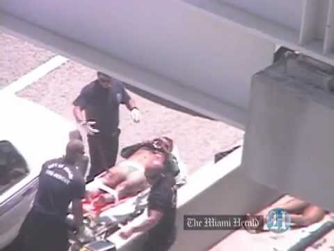 Fire Rescue Arrives At Scene Of Face-eating Attack In Miami