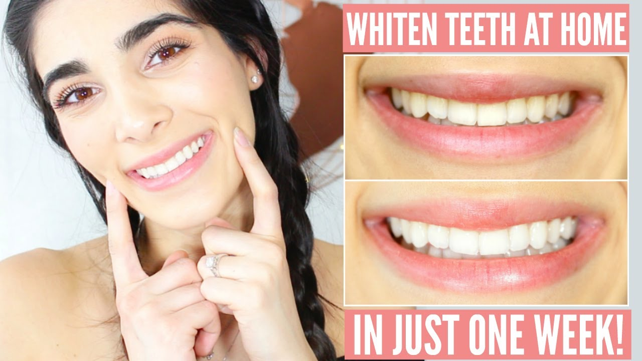 How To Whiten Teeth At Home Ft Smile Brilliant Youtube