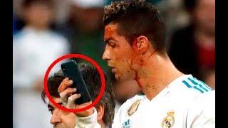 Cristiano Ronaldo comprueba una herida en su cara con un teléfono móvil