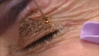 Plasma pen video-fibroblast
