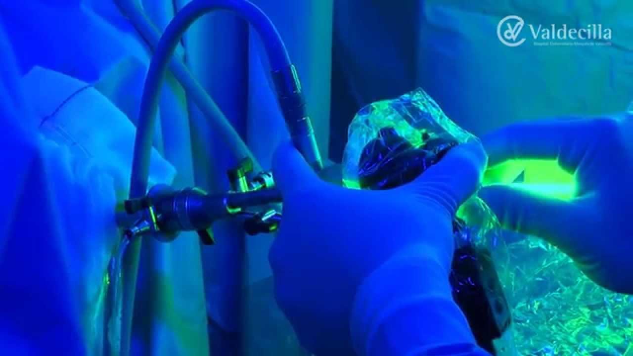 video de cirugía de próstata con robot da vinci ituzaingo