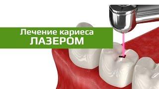 Лечение кариеса лазером: лечение кариеса без сверления(Использование лазера в стоматологии сделало возможным проводить некоторые хирургические, терапевтически..., 2016-01-21T00:18:53.000Z)