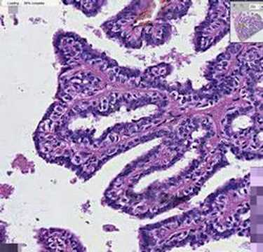 Breast in papilloma