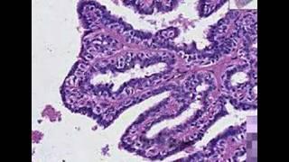 Histopathology Breast--Intraductal papilloma