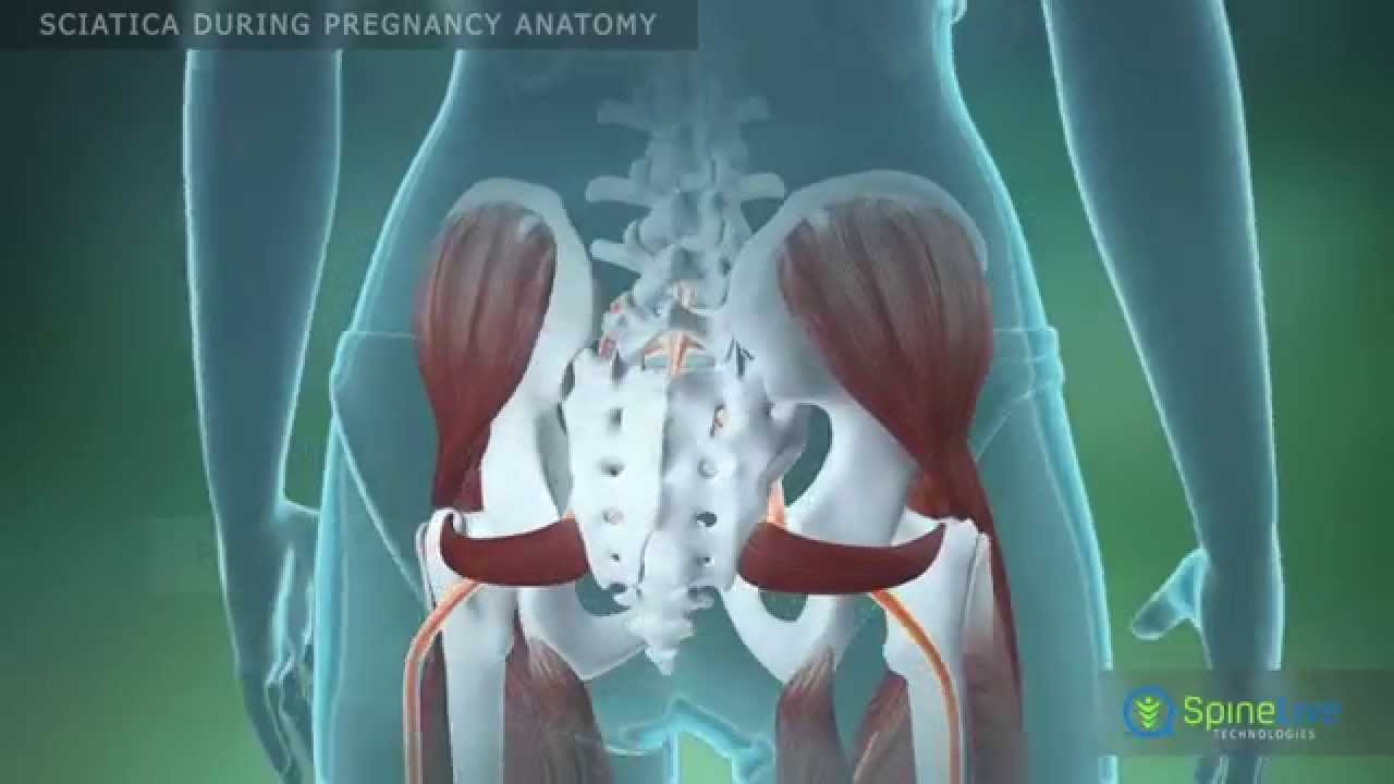 Sciatica during pregnancy Anatomy - YouTube