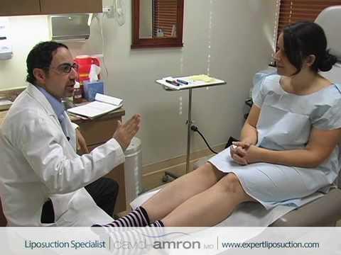Arms Liposuction Surgery Arm Fat Lipo Surgeon Dr. David Amron