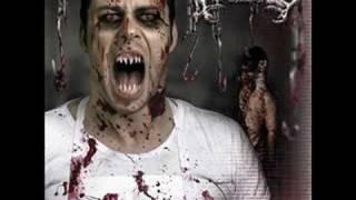 Avulsed - Cadaver Decapitado