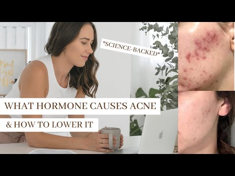 what-hormone-causes-acne?-put-an-end-to-hormonal-acne