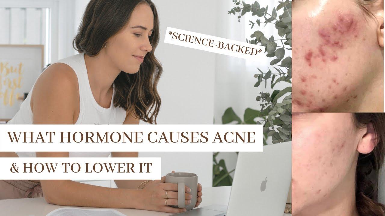 doxycicline pierdere în greutate acnee)